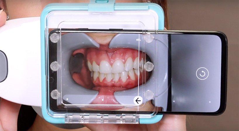 ScanbOx the dental scanner